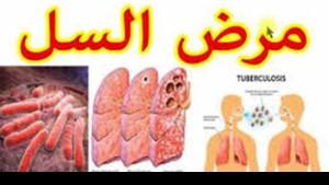 مرض السل
