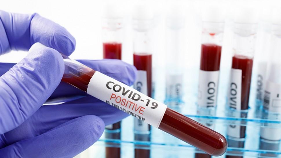 قابس :  تسجيل 62 إصابة و3 وفيات جديدة بفيروس كورونا
