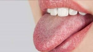 3 أعراض قد تكون مؤشرا على الإصابة بسرطان الفم